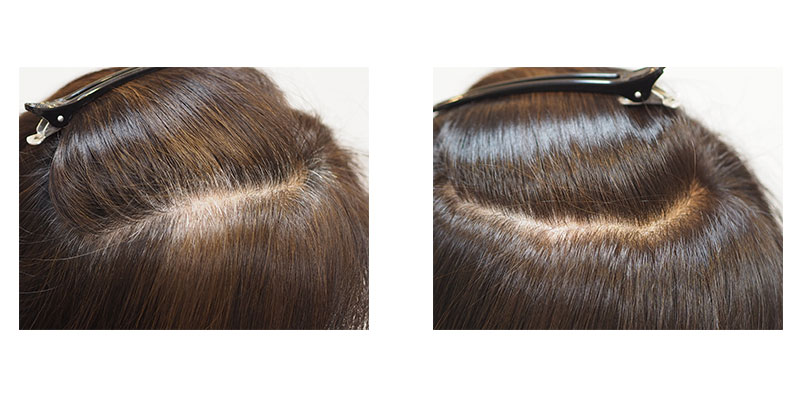 金沢文庫の美容院(美容室)クロッグヘアー 白髪染めは2プロセスカラー ビフォーアフター2